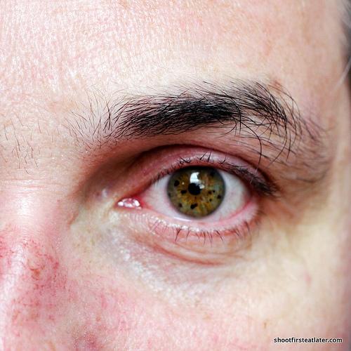 Kit's eye